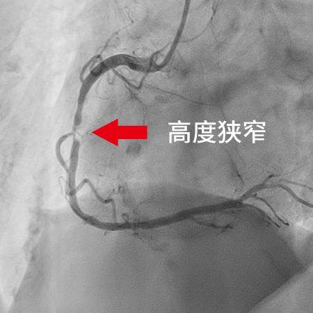 冠動脈造影検査(CAG)