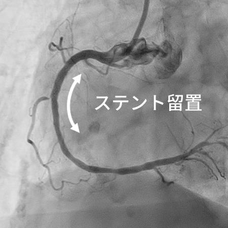 経皮的冠動脈ステント留置術(PCI)